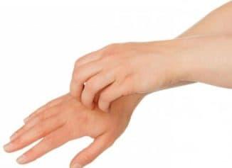 гусиная кожа на кистях рук